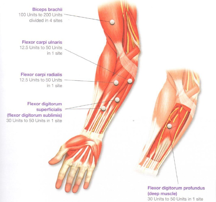 comprehensive pain management by judy lee m.d., ph.d (pain, Skeleton
